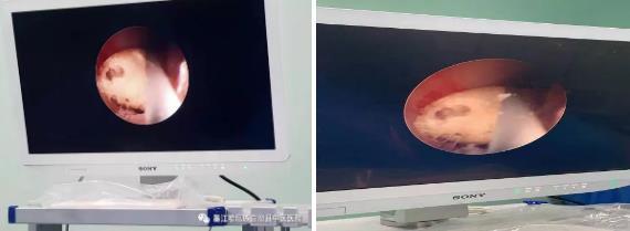 输尿管镜钬激光碎石微创手术(图2)